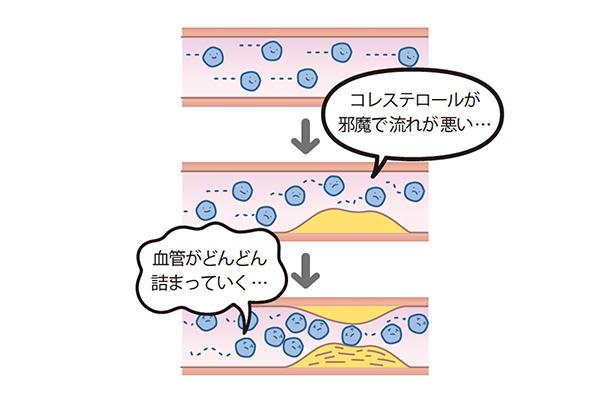 脂が血管にたまってどろどろの血液に<br>血管にコレステロールがたまると、血管の壁に脂肪分が沈着していく。その結果、血管が狭くなったり、詰まったりして、心臓に負担がかかるほか、血管も壊れやすくなってしまい、また各臓器や組織に栄養がいきわたらなくなる。