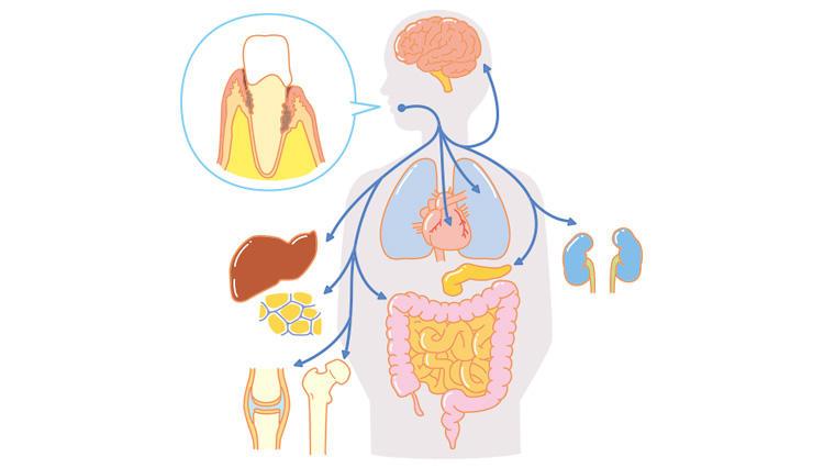 【口臭ケア】口腔細菌叢(こうくうさいきんそう)という細菌集団を知ってますか?