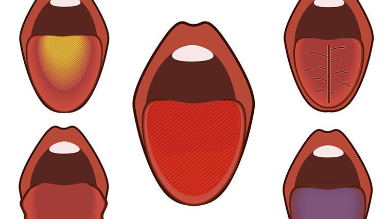 体の不調は「舌」で診断できる! あなたの危険舌はどのタイプ?