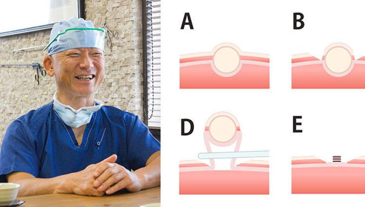 内視鏡外科手術のパイオニアに聞いた、負担最小の最新「胃がん」手術法とは?